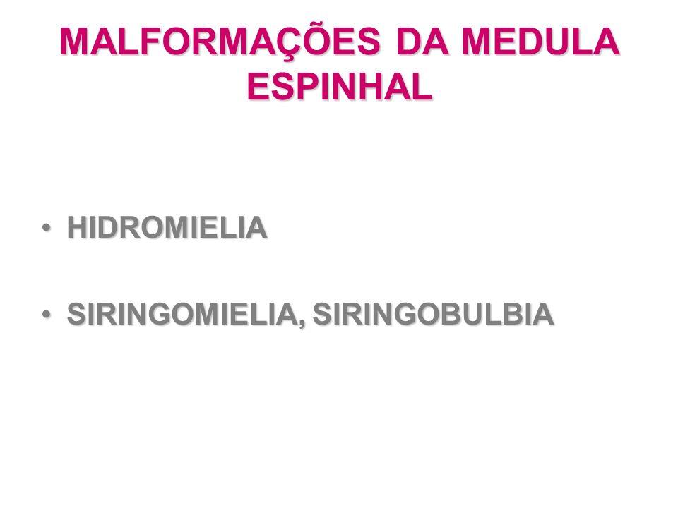 MALFORMAÇÕES DA MEDULA ESPINHAL HIDROMIELIAHIDROMIELIA SIRINGOMIELIA, SIRINGOBULBIASIRINGOMIELIA, SIRINGOBULBIA