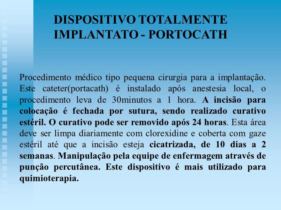 Procedimento médico tipo pequena cirurgia para a implantação. Este cateter(portacath) é instalado após anestesia local, o procedimento leva de 30minut
