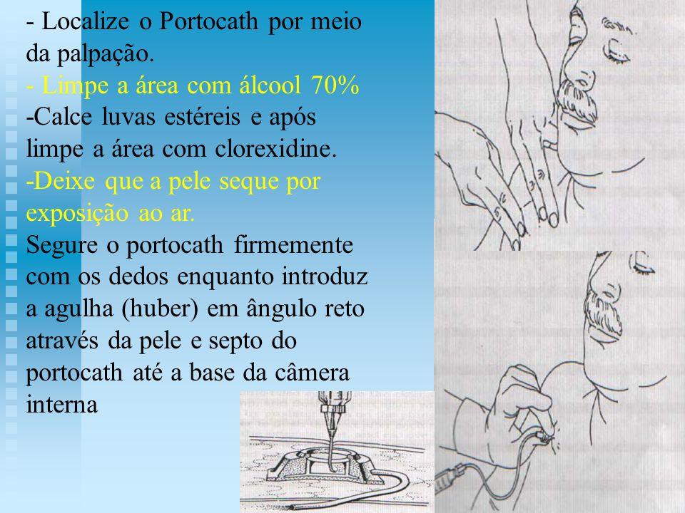 - Localize o Portocath por meio da palpação. - Limpe a área com álcool 70% -Calce luvas estéreis e após limpe a área com clorexidine. -Deixe que a pel