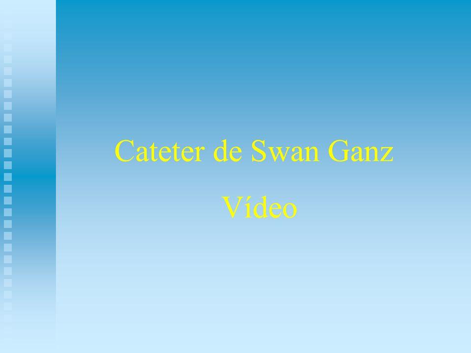 Cateter de Swan Ganz Vídeo