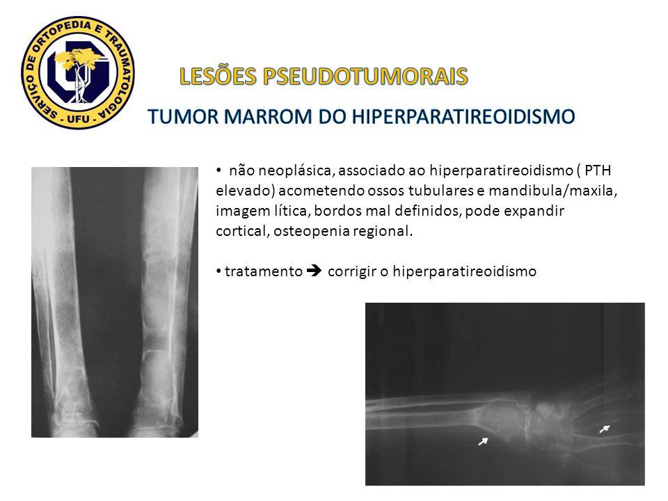 não neoplásica, associado ao hiperparatireoidismo ( PTH elevado) acometendo ossos tubulares e mandibula/maxila, imagem lítica, bordos mal definidos, p