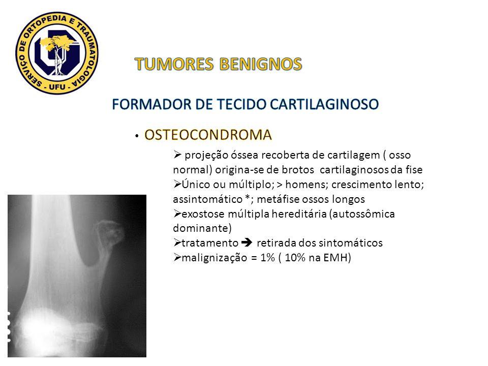 projeção óssea recoberta de cartilagem ( osso normal) origina-se de brotos cartilaginosos da fise Único ou múltiplo; > homens; crescimento lento; assi