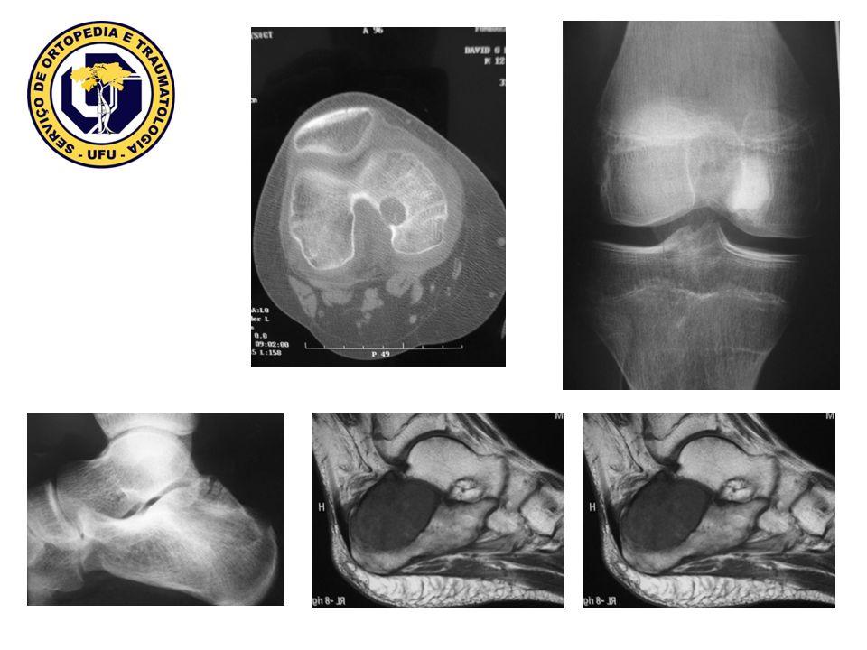 não neoplásica, associado ao hiperparatireoidismo ( PTH elevado) acometendo ossos tubulares e mandibula/maxila, imagem lítica, bordos mal definidos, pode expandir cortical, osteopenia regional.
