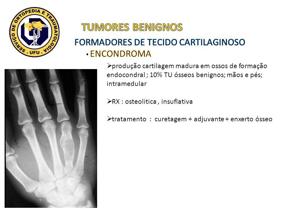 produção cartilagem madura em ossos de formação endocondral ; 10% TU ósseos benignos; mãos e pés; intramedular RX : osteolitica, insuflativa tratament