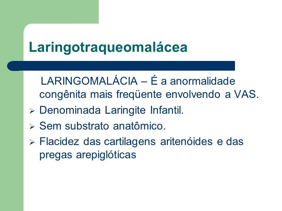 Laringotraqueomalácea LARINGOMALÁCIA – É a anormalidade congênita mais freqüente envolvendo a VAS. Denominada Laringite Infantil. Sem substrato anatôm