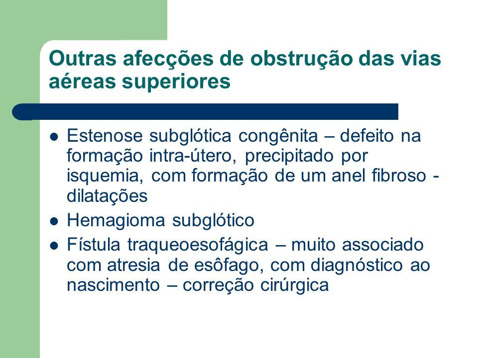 Outras afecções de obstrução das vias aéreas superiores Estenose subglótica congênita – defeito na formação intra-útero, precipitado por isquemia, com