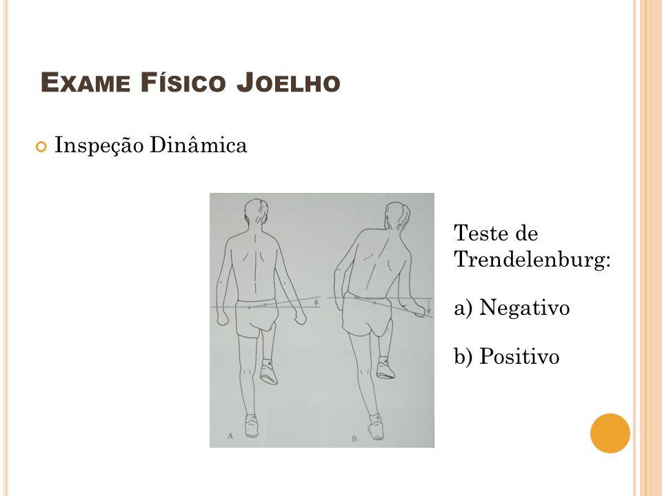 E XAME F ÍSICO J OELHO Inspeção Dinâmica Teste de Trendelenburg: a) Negativo b) Positivo