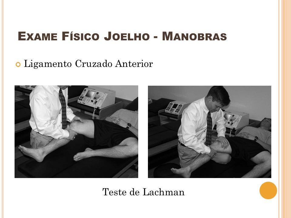 E XAME F ÍSICO J OELHO - M ANOBRAS Ligamento Cruzado Anterior Teste de Lachman