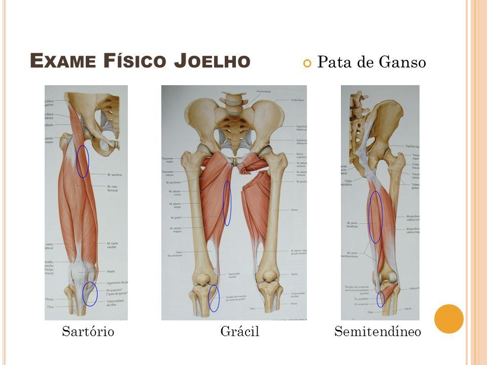 E XAME F ÍSICO J OELHO - M ANOBRAS Ligamento Cruzado Anterior Jerk Test (teste do ressalto) Flexão do quadril 45 + flexão joelho 90 Uma mão: segura o pé ou perna em rotação interna Outra mão: pressiona o terço superior externo da perna para frente (stress em valgo) Extensão: ressalto – subluxação ântero-lateral do joelho – subluxado até a extensão total
