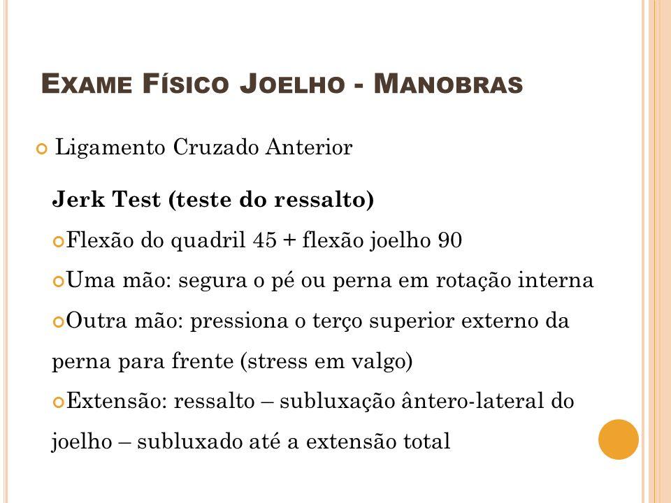 E XAME F ÍSICO J OELHO - M ANOBRAS Ligamento Cruzado Anterior Jerk Test (teste do ressalto) Flexão do quadril 45 + flexão joelho 90 Uma mão: segura o