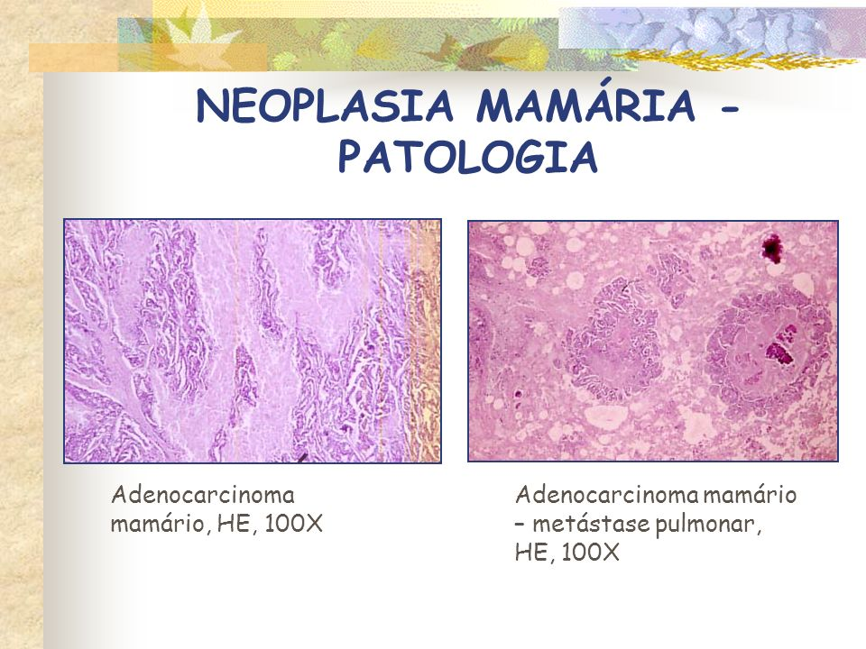 NEOPLASIA MAMÁRIA - PATOLOGIA HIPERPLASIA FIBROEPITELIAL