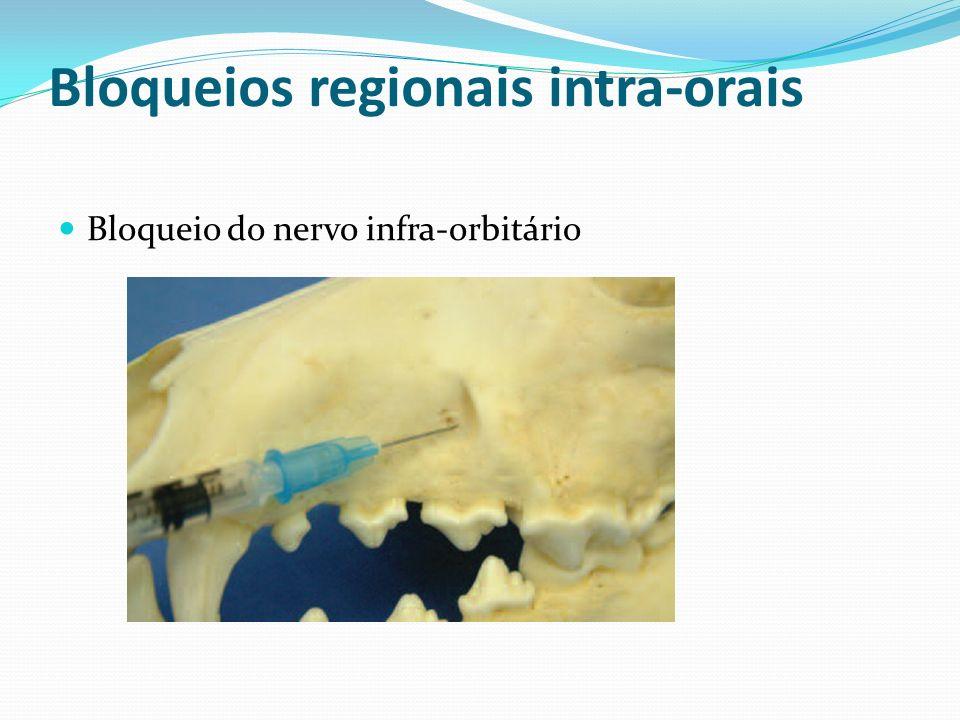 Bloqueios regionais intra-orais Bloqueio do nervo infra-orbitário