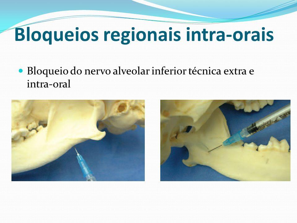 Bloqueios regionais intra-orais Bloqueio do nervo alveolar inferior técnica extra e intra-oral