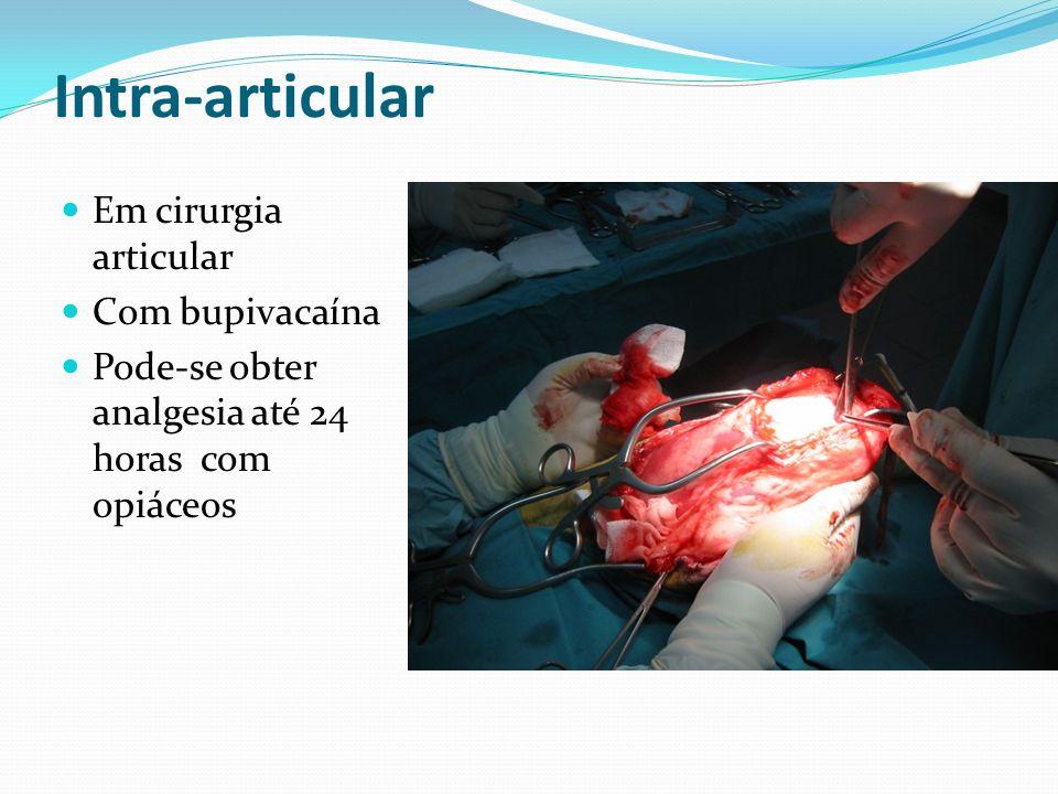 Intra-articular Em cirurgia articular Com bupivacaína Pode-se obter analgesia até 24 horas com opiáceos