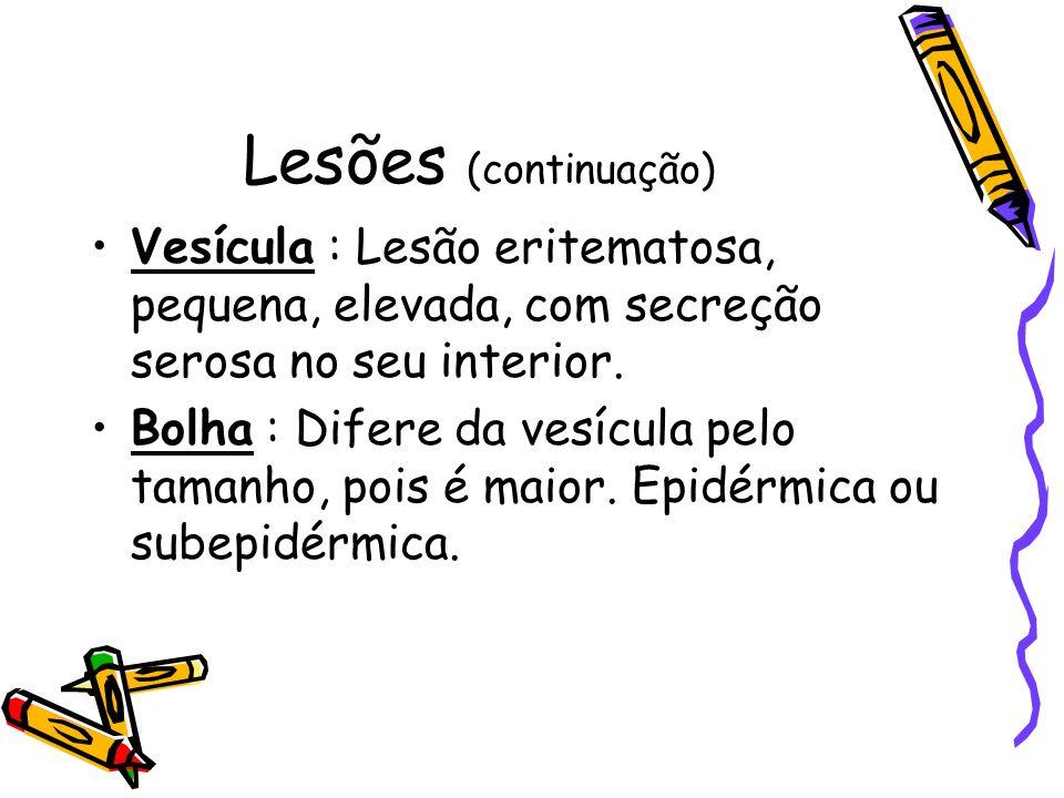 Lesões (continuação) Vesícula : Lesão eritematosa, pequena, elevada, com secreção serosa no seu interior.