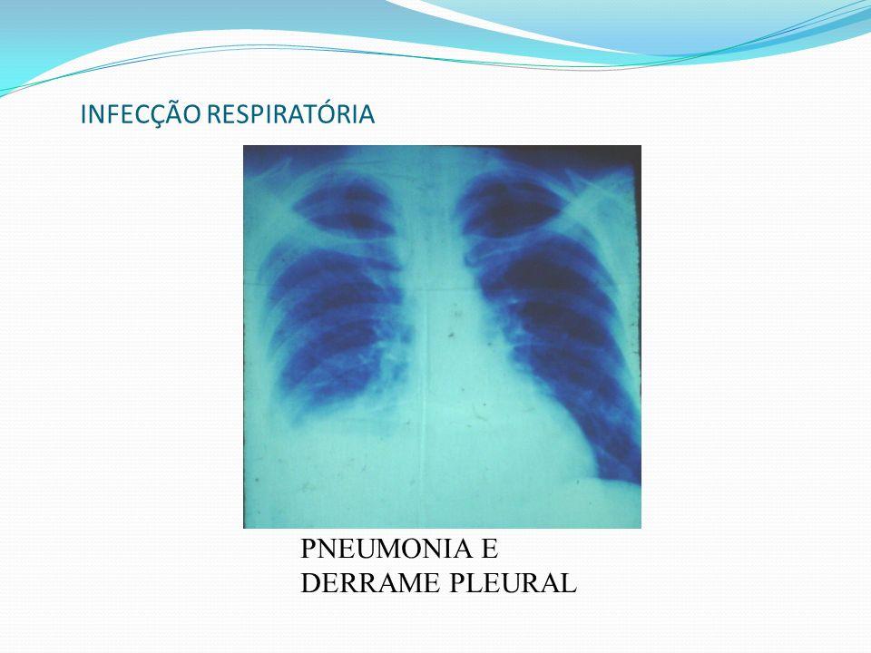 INFECÇÃO RESPIRATÓRIA PNEUMONIA E DERRAME PLEURAL