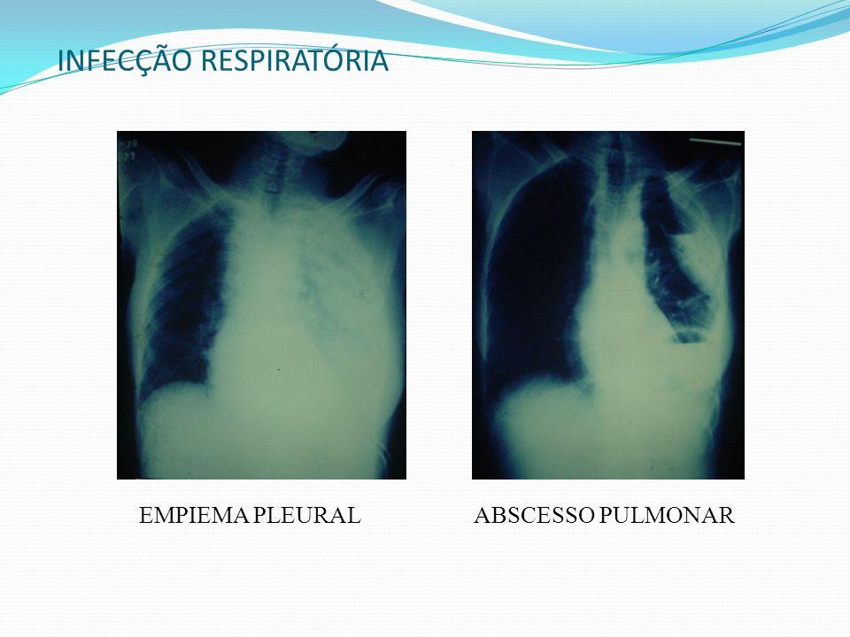 INFECÇÃO RESPIRATÓRIA EMPIEMA PLEURALABSCESSO PULMONAR