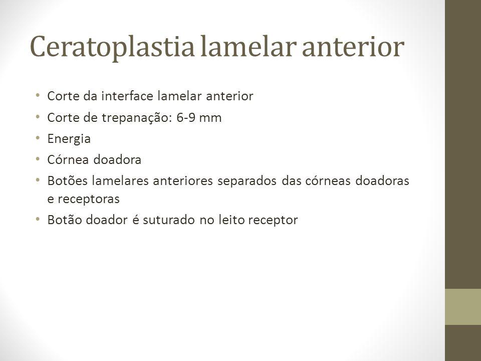 Ceratoplastia lamelar anterior Corte da interface lamelar anterior Corte de trepanação: 6-9 mm Energia Córnea doadora Botões lamelares anteriores sepa