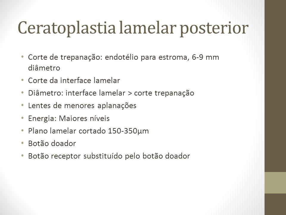 Corte de trepanação: endotélio para estroma, 6-9 mm diâmetro Corte da interface lamelar Diâmetro: interface lamelar > corte trepanação Lentes de menor
