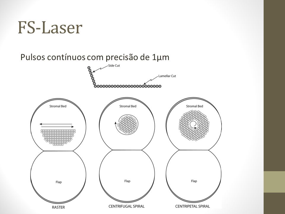FS-Laser 2001: Primeiro FS-Laser lançado para LASIK.