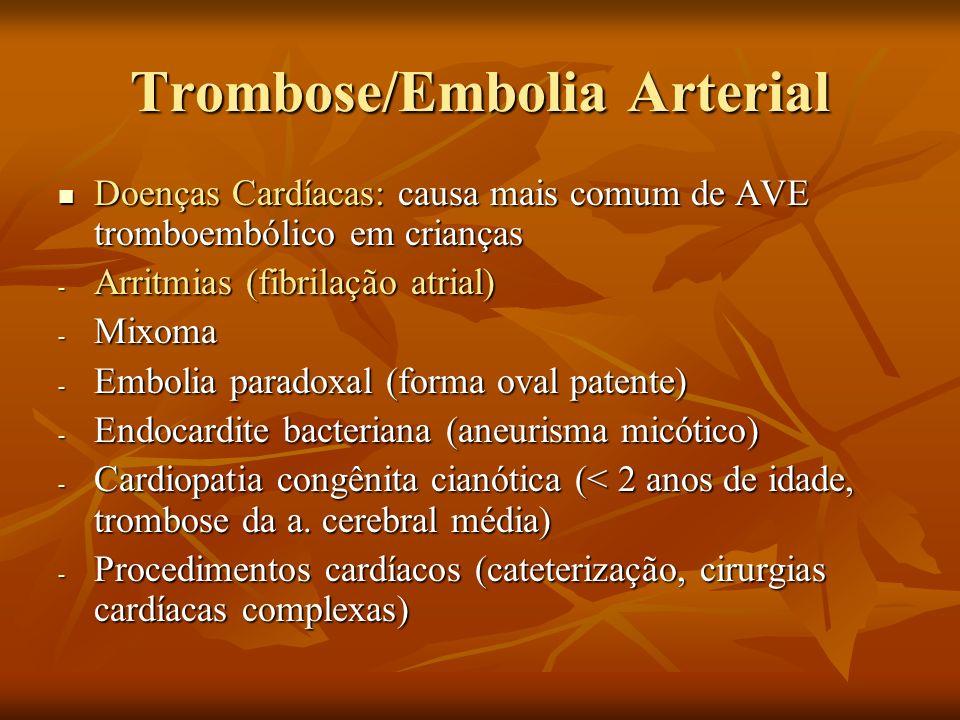 Trombose/Embolia Arterial Doenças Cardíacas: causa mais comum de AVE tromboembólico em crianças Doenças Cardíacas: causa mais comum de AVE tromboemból