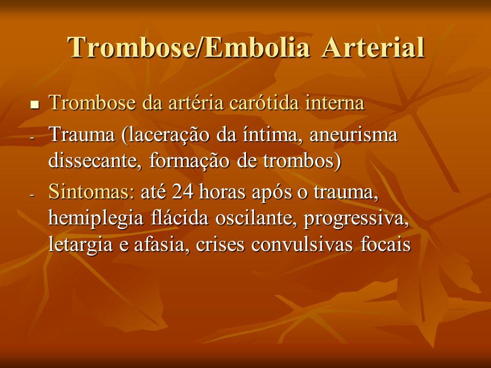 Trombose/Embolia Arterial Trombose da artéria carótida interna Trombose da artéria carótida interna - Trauma (laceração da íntima, aneurisma dissecant