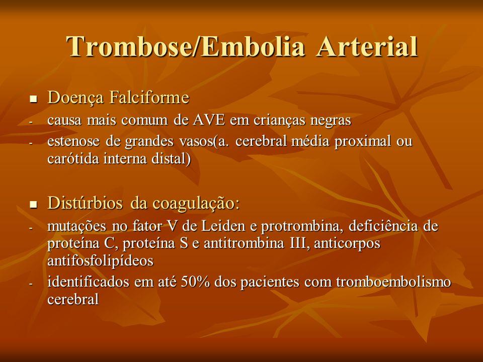 Trombose/Embolia Arterial Doença Falciforme Doença Falciforme - causa mais comum de AVE em crianças negras - estenose de grandes vasos(a. cerebral méd