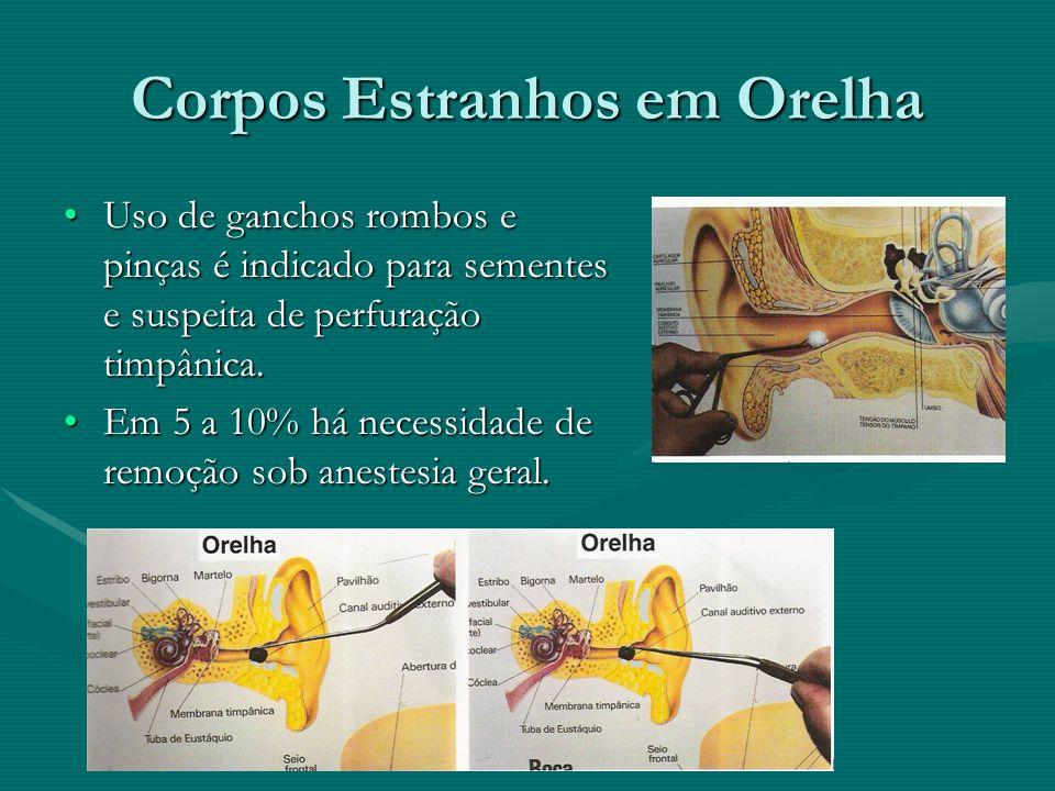 Corpos Estranhos em Orelha Uso de ganchos rombos e pinças é indicado para sementes e suspeita de perfuração timpânica.Uso de ganchos rombos e pinças é