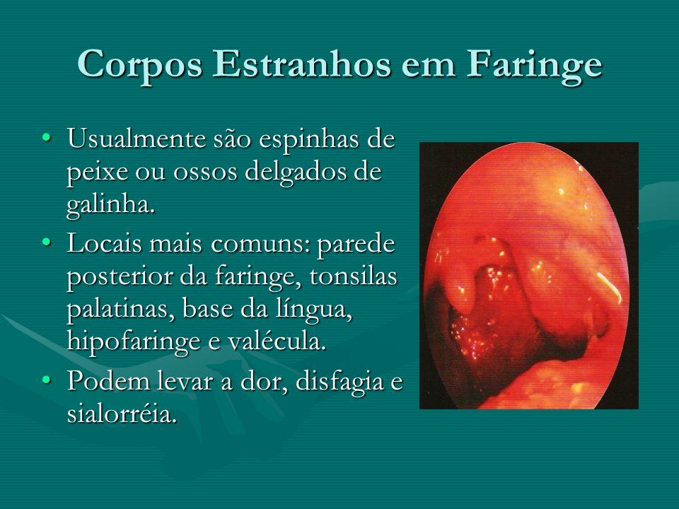 Corpos Estranhos em Faringe Usualmente são espinhas de peixe ou ossos delgados de galinha.Usualmente são espinhas de peixe ou ossos delgados de galinh