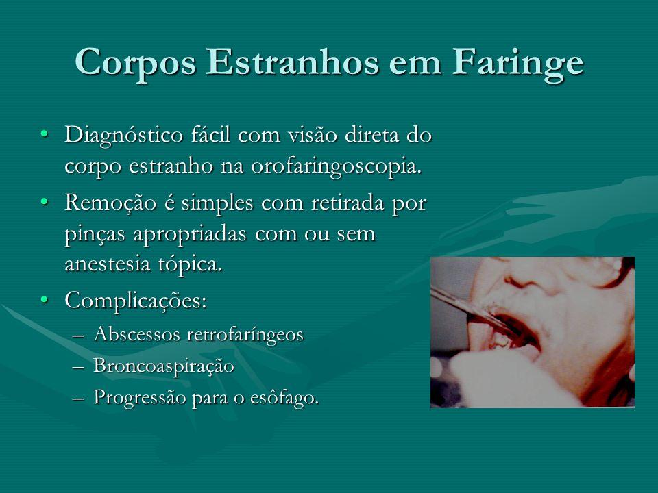 Corpos Estranhos em Faringe Diagnóstico fácil com visão direta do corpo estranho na orofaringoscopia.Diagnóstico fácil com visão direta do corpo estra