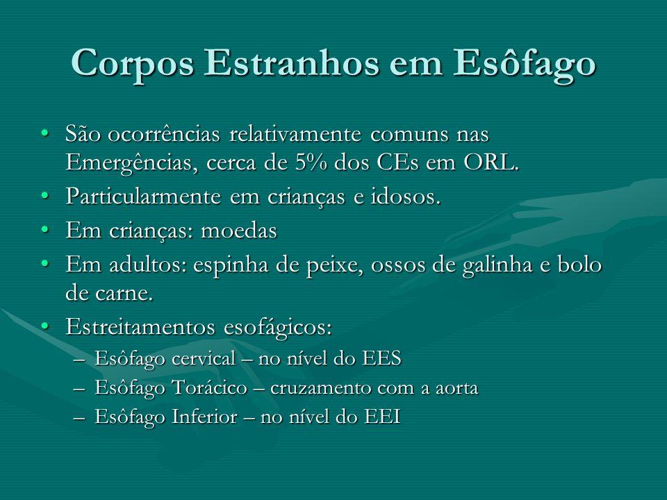 Corpos Estranhos em Esôfago São ocorrências relativamente comuns nas Emergências, cerca de 5% dos CEs em ORL.São ocorrências relativamente comuns nas