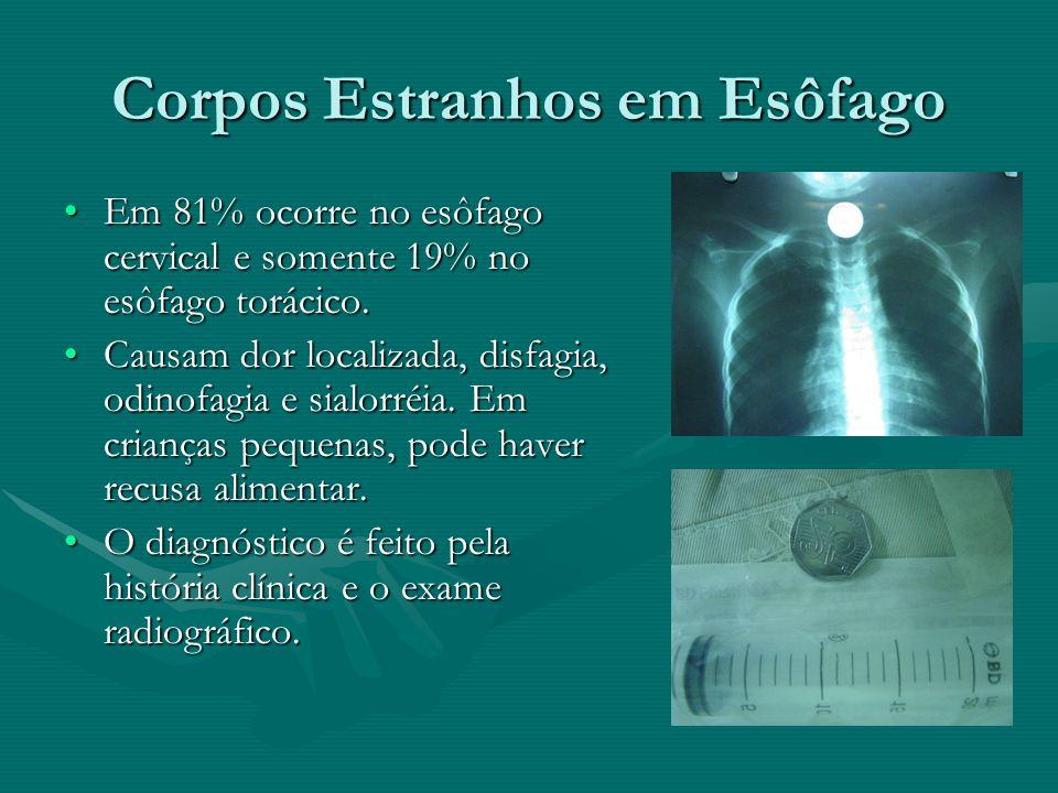 Corpos Estranhos em Esôfago Em 81% ocorre no esôfago cervical e somente 19% no esôfago torácico.Em 81% ocorre no esôfago cervical e somente 19% no esô