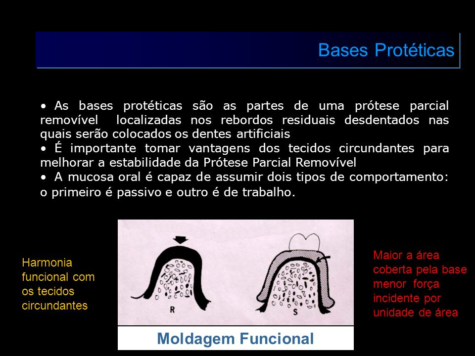 Bases Protéticas As bases protéticas são as partes de uma prótese parcial removível localizadas nos rebordos residuais desdentados nas quais serão col