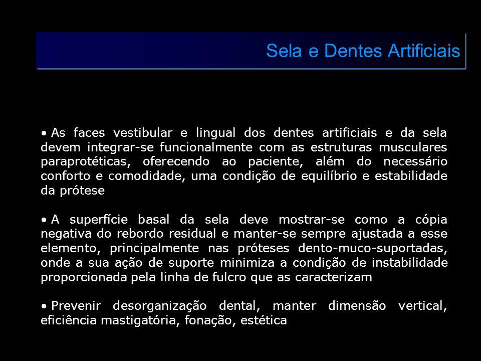 Sela e Dentes Artificiais As faces vestibular e lingual dos dentes artificiais e da sela devem integrar-se funcionalmente com as estruturas musculares
