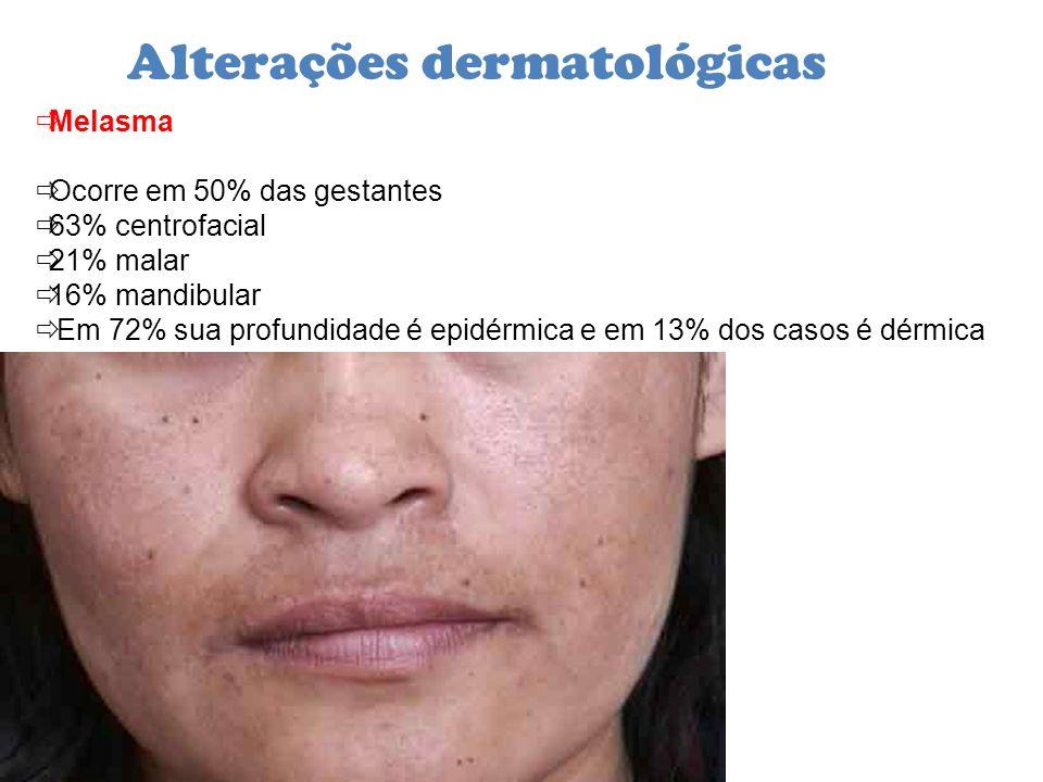 Alterações dermatológicas Melasma Ocorre em 50% das gestantes 63% centrofacial 21% malar 16% mandibular Em 72% sua profundidade é epidérmica e em 13%