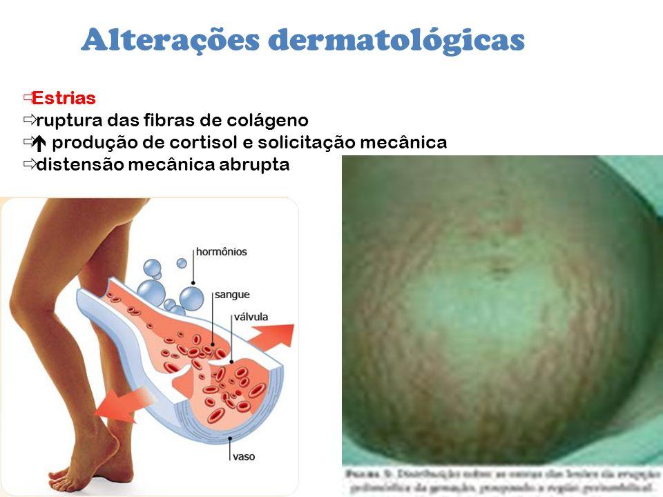 Alterações dermatológicas Estrias ruptura das fibras de colágeno produção de cortisol e solicitação mecânica distensão mecânica abrupta