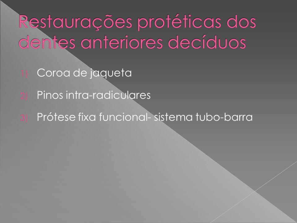 1) Coroa de jaqueta 2) Pinos intra-radiculares 3) Prótese fixa funcional- sistema tubo-barra