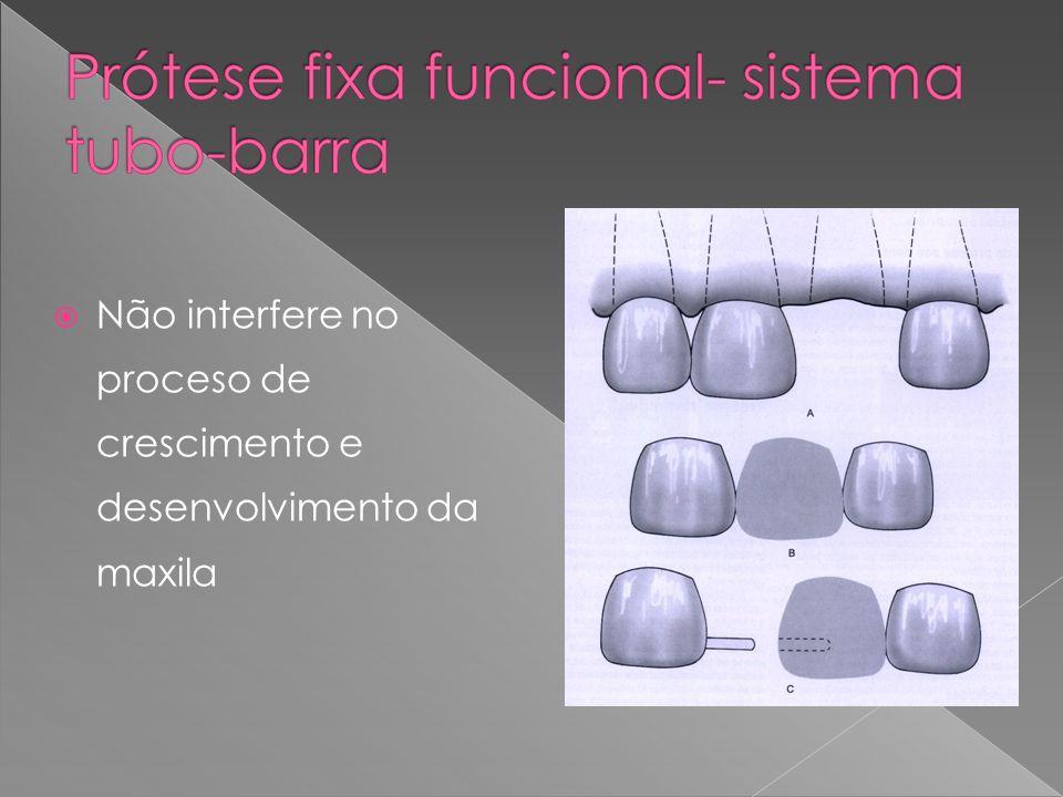 Não interfere no proceso de crescimento e desenvolvimento da maxila