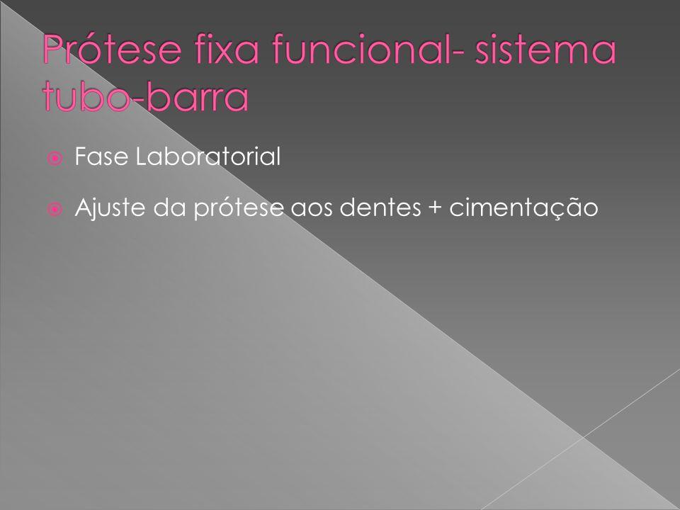 Fase Laboratorial Ajuste da prótese aos dentes + cimentação