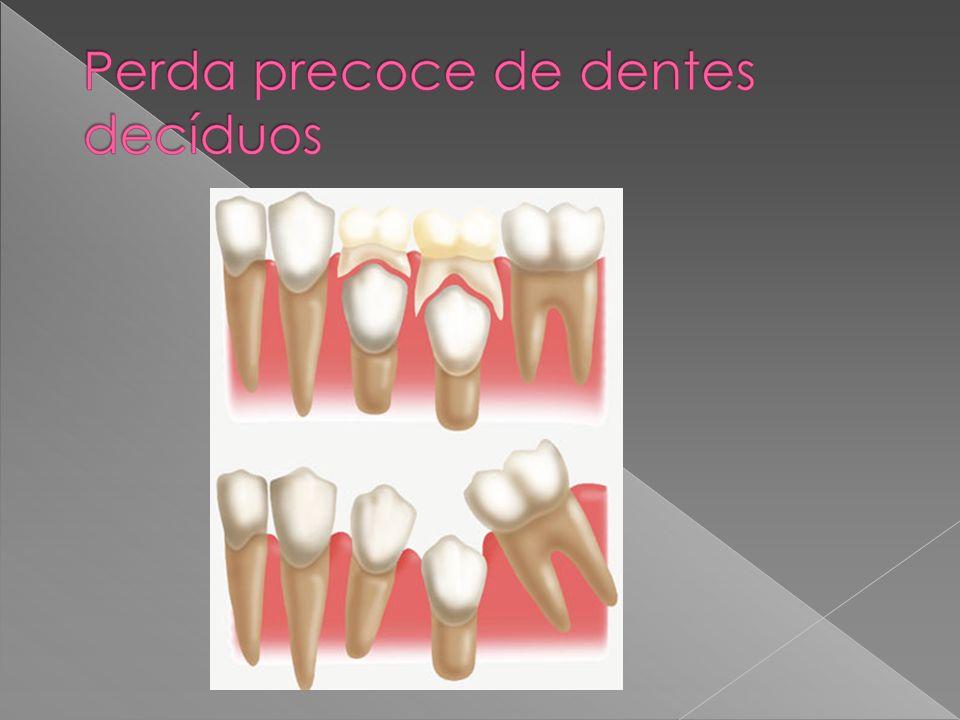 Requisitos : a) Não deve interferir no processo de desenvolvimento dos dentes e arcos dentários b) Deve manter espaço para erupção dos permanentes c) Impedir a extrusão dos dentes antagonistas d) Proporcionar boa mastigação e fonação e) Permitir fácil limpeza
