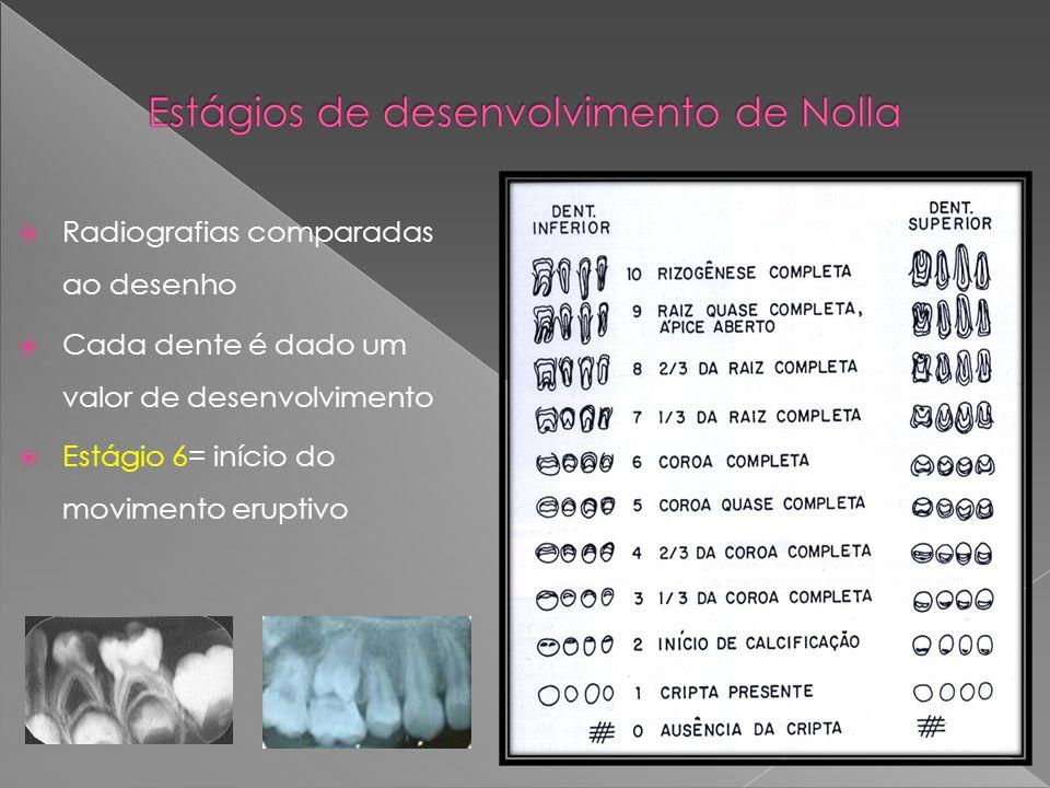 Estágio 7,5 a 8 de Nolla: o irrompimento através da crista alveolar irá ocorrer em pouco tempo, não necessita instalar prótese