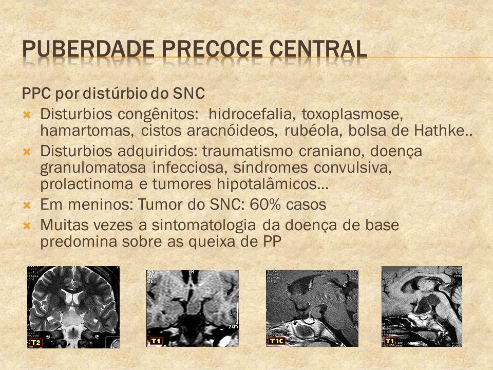 PPC por distúrbio do SNC Disturbios congênitos: hidrocefalia, toxoplasmose, hamartomas, cistos aracnóideos, rubéola, bolsa de Hathke.. Disturbios adqu