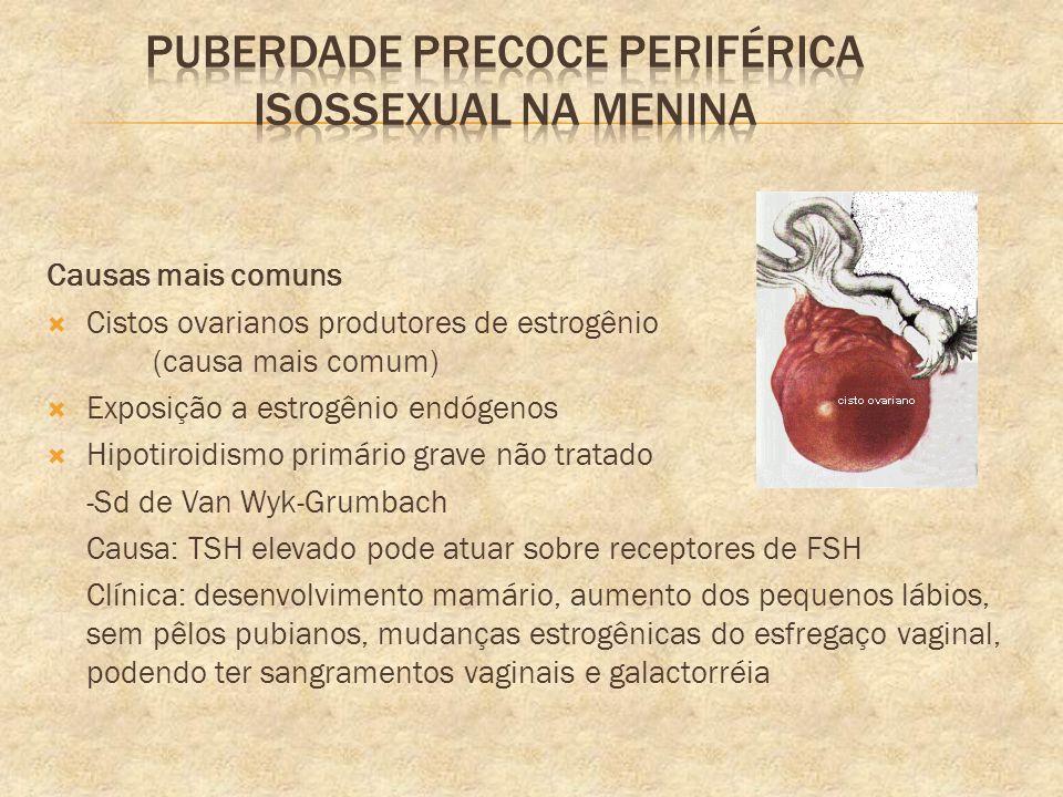 Causas mais comuns Cistos ovarianos produtores de estrogênio (causa mais comum) Exposição a estrogênio endógenos Hipotiroidismo primário grave não tra