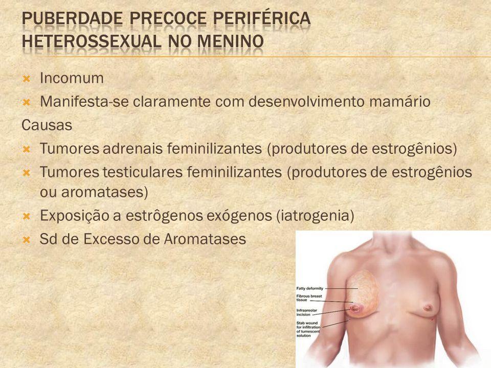 Incomum Manifesta-se claramente com desenvolvimento mamário Causas Tumores adrenais feminilizantes (produtores de estrogênios) Tumores testiculares fe
