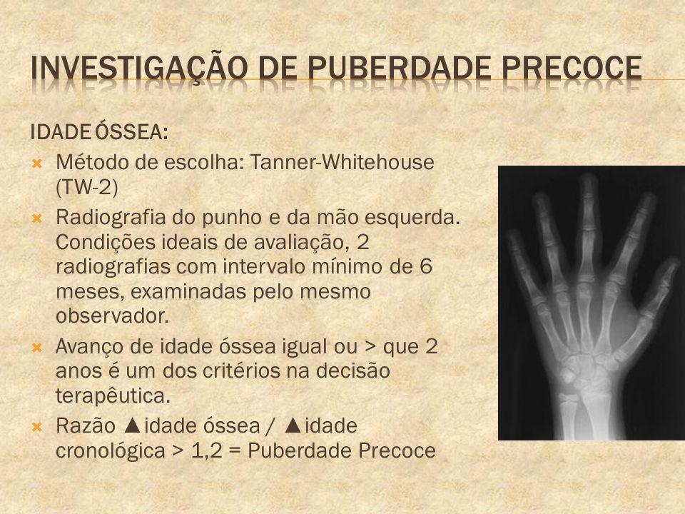 IDADE ÓSSEA: Método de escolha: Tanner-Whitehouse (TW-2) Radiografia do punho e da mão esquerda. Condições ideais de avaliação, 2 radiografias com int