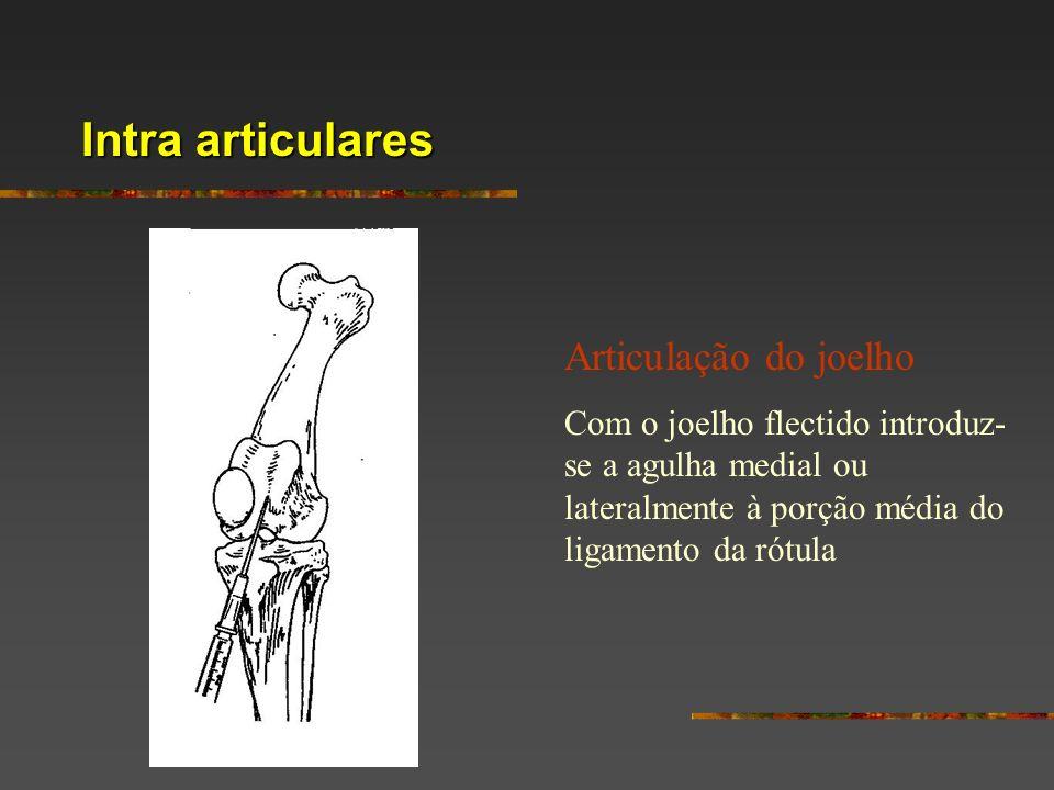 Intra articulares Articulação do joelho Com o joelho flectido introduz- se a agulha medial ou lateralmente à porção média do ligamento da rótula