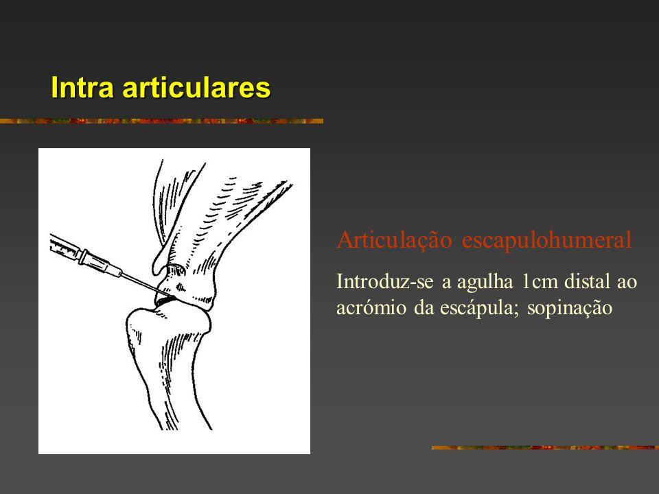 Intra articulares Articulação escapulohumeral Introduz-se a agulha 1cm distal ao acrómio da escápula; sopinação