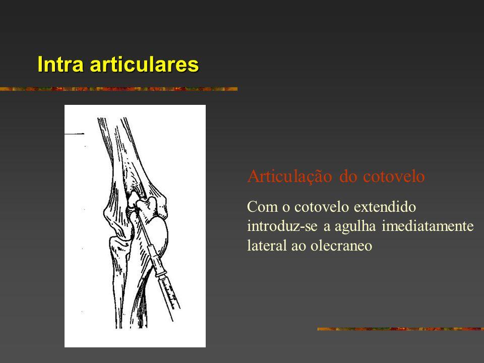 Intra articulares Articulação do cotovelo Com o cotovelo extendido introduz-se a agulha imediatamente lateral ao olecraneo