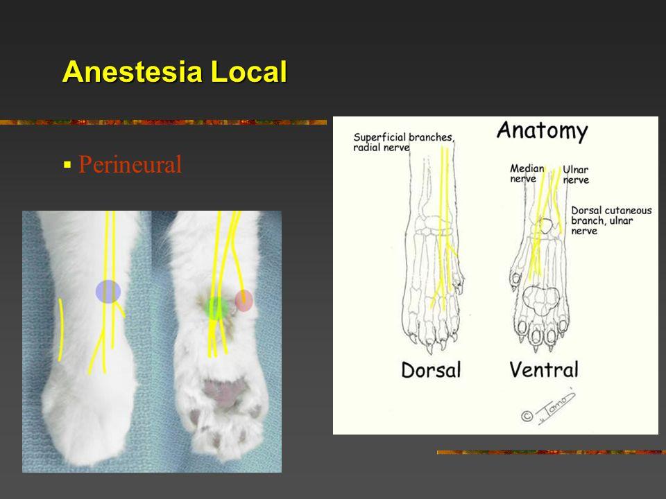Anestesia Local Perineural