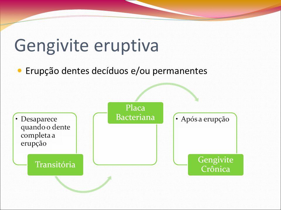 Gengivite eruptiva Erupção dos dentes decíduos Inflamação localizada da gengiva Hiperemia da mucosa alveolar Cistos/ hematoma de erupção Dor espontânea